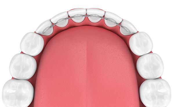 Orthodontiste Orange